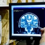 'Google Inside Your Head': implantes cerebrais para revolucionar a IA para humanos