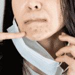 Dermatologist: 'Maskne' Is Real