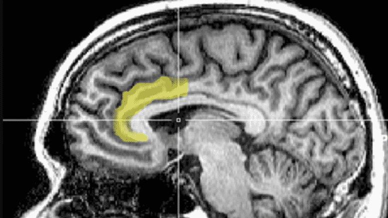 Der Verstand eines Technokraten: Kognitive Dissonanz und Narzissmus auf Steroiden